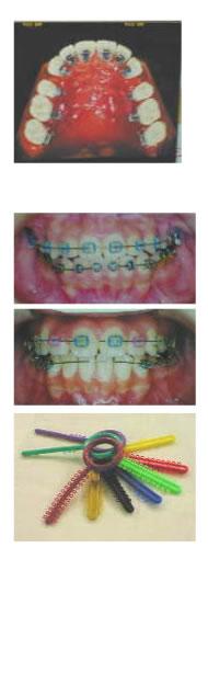 カラーモジュールを使った歯列矯正