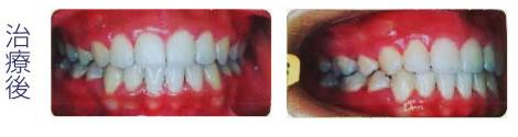 下顎前突 治療後